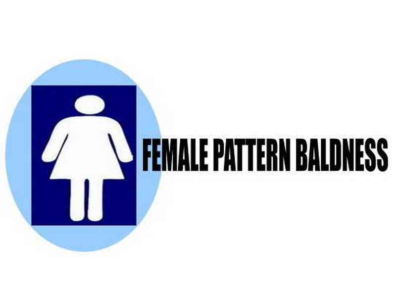 Female Pattern Baldness
